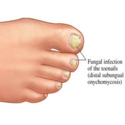 Types Of Fungal Yeast Infections In The Body