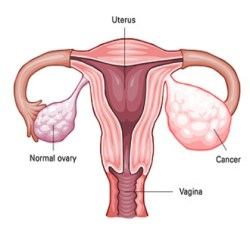 Five Major Causes Of Ovarian Cancer