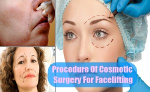 Procedure Of Cosmetic Surgery For Facelifting