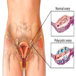 Polycystic Ovarian Syndrome Symptoms And Treatment