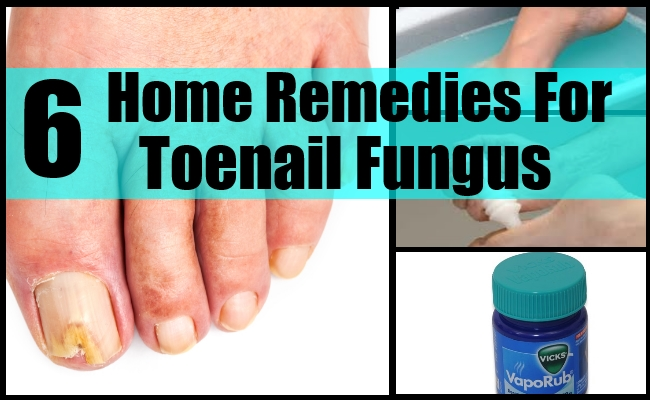 6 Home Remes For Toenail Fungus