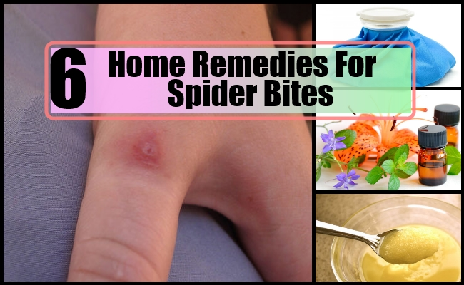 What Is A Home Remedy For Spider Bites