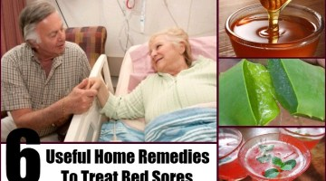 Home Remedies To Treat Bed Sores