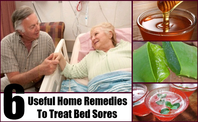 6 useful home remedies to treat bed sores natural cure for Bed sore relief