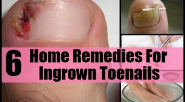 Home Remedies For Ingrown Toenails