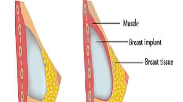 Breast Augmentation Size