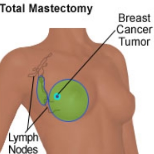 Breast Reconstructive Surgery With Simple Mastectomy