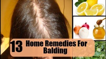 Home Remedies For Balding