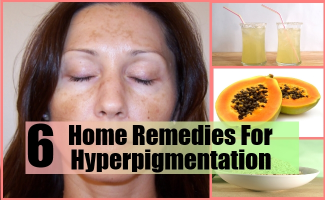 6 Home Remedies For Hyperpigmentation - Natural Treatments ...