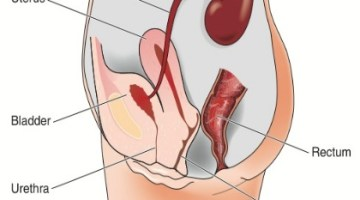 bladder infection in women