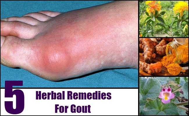 most effective medicine for gout how to cure uric acid kidney stones how to fight high uric acid