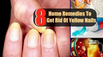8 Top Home Remedies To Get Rid Of Yellow Nails