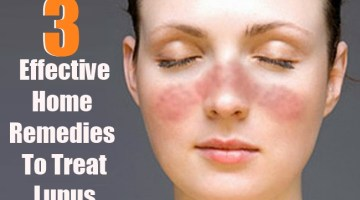 3 Effective Home Remedies To Treat Lupus