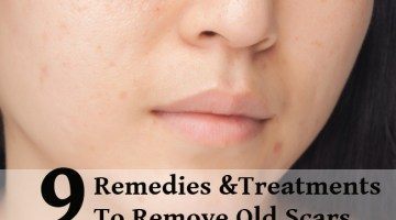 Amazing Natural Remedies And Treatments To Remove Old Scars