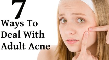 7 Ways To Deal With Adult Acne