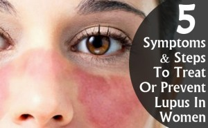 Symptoms And Steps To Treat Or Prevent Lupus In Women
