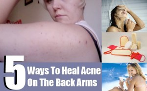 acne-on-the-back-of-arms