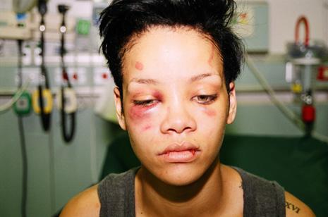 Rihanna Bruised