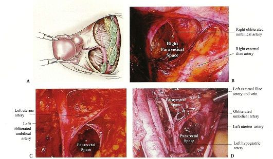 Uterine artery ligation in laparoscopic hysterectomy and myomectomy