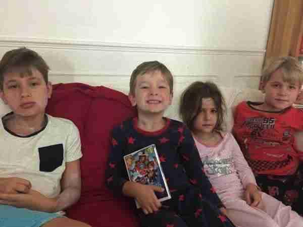4 children with chickenpox
