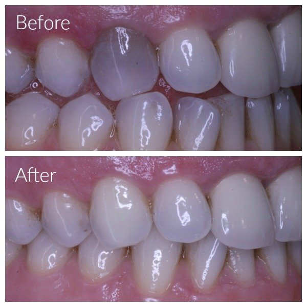 Internal Tooth Bleaching - Leederville Dental - Perth\u0027s most
