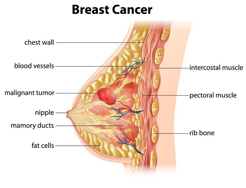 Woman Breast Cancer