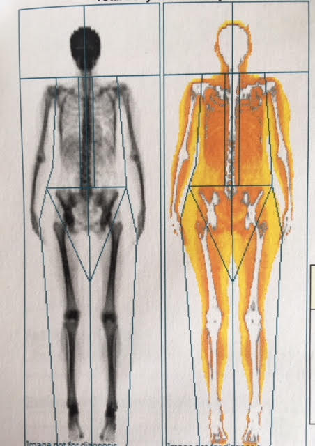 I got a DEXA scan to measure body fat - here\u0027s how it went