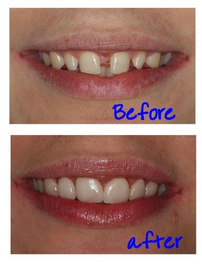 Recommended Dentists in Preston   Good Dentists in Preston ...