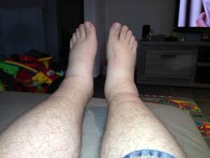 Swollen feet, side effect of verapamil