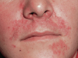 Red Rash With White Bumps Face