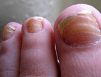 Ridges in Fingernails, Toenails, Vertical, Horizontal ...