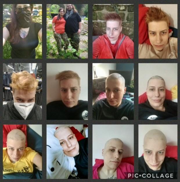 Vlasy před a během chemo