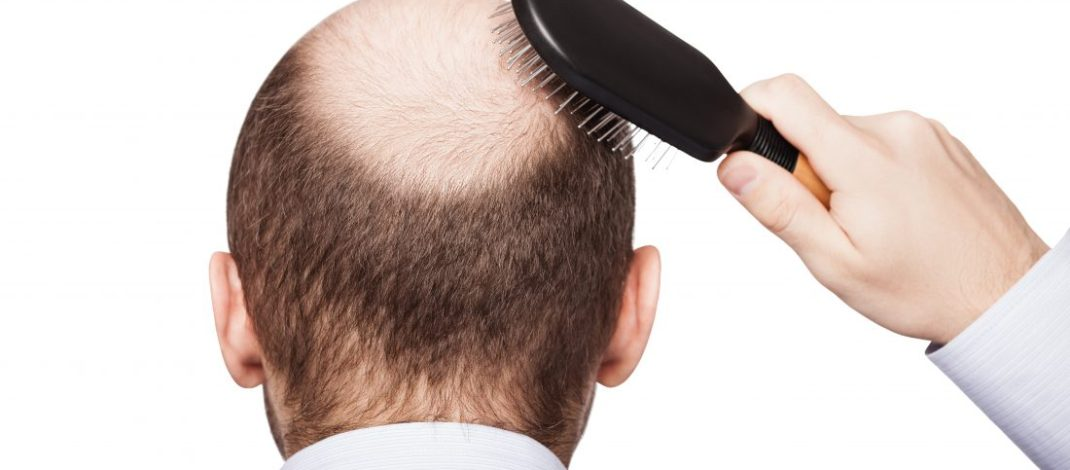 Top 9 Causes of hair loss in men