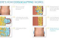 طريقة النحت البارد Coolsculpting لتخسيس الوزن