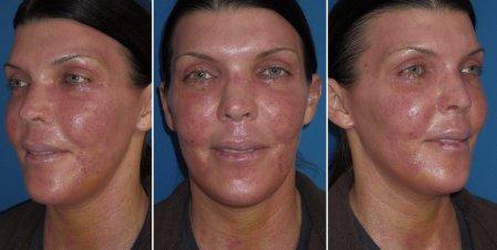 Fractional Skin Resurfacing Downtime