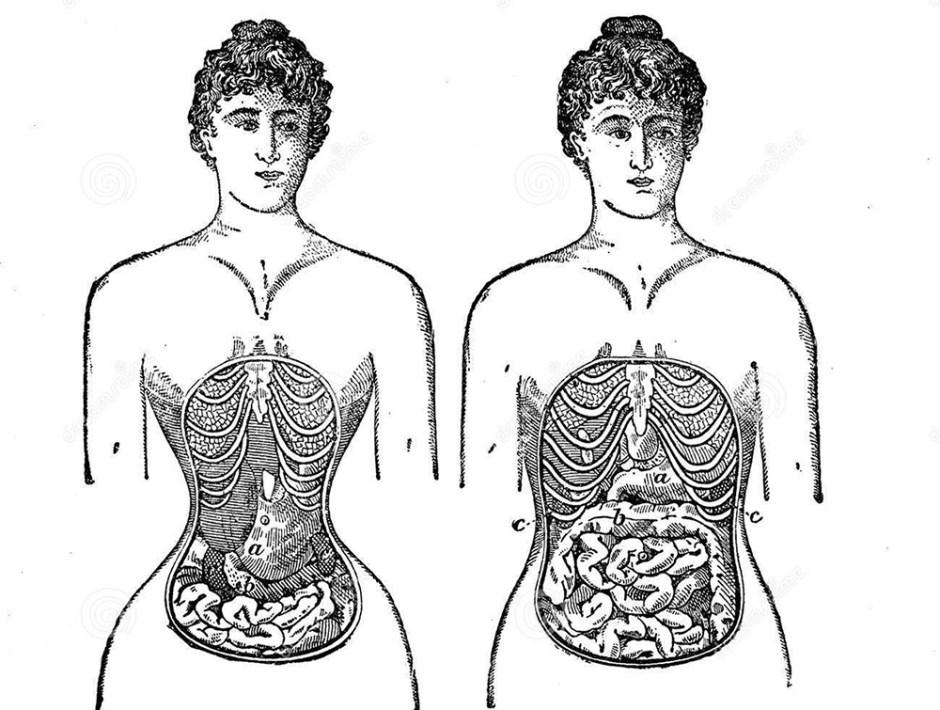 Deformazione del corsetto