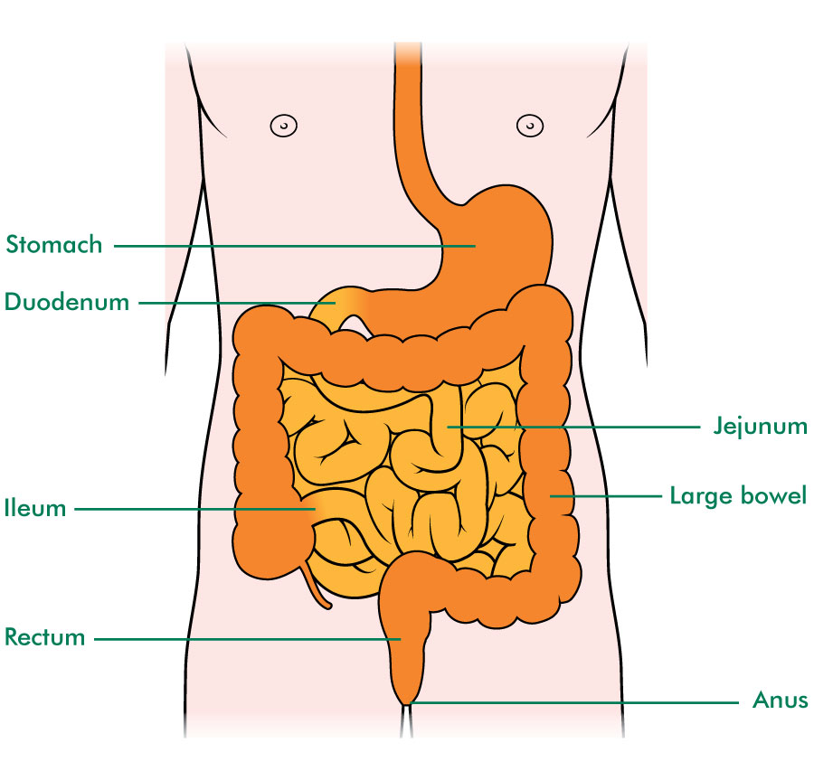 Small bowel cancer - Macmillan Cancer Support