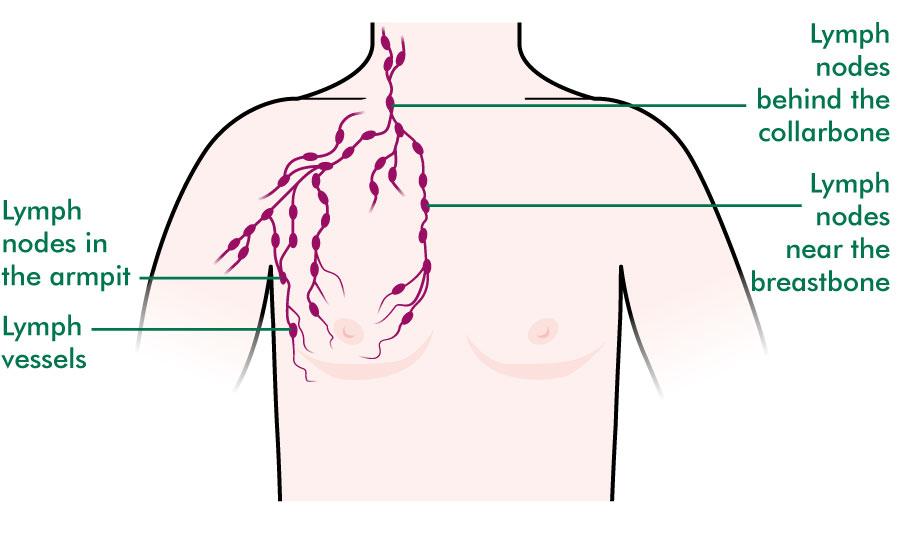 Men\u0027s breasts - Understanding - Macmillan Cancer Support