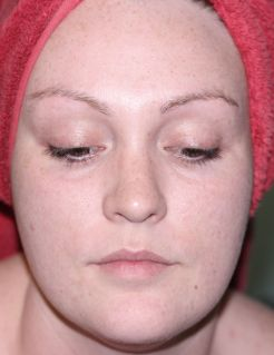 microdermabrasion at home face before pmd