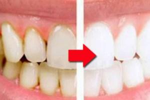 Cara Sederhana Membersihkan Karang Gigi