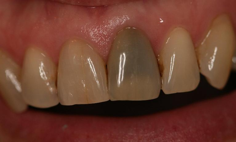 Dentist Manassas VA Smile Gallery Before and After Images
