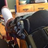 The Ski Trip Which Broke Her Leg