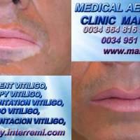 VITILIGO CAUSAS cura para vitiligo Micropigmentación Vitiligo Dermopigmentación Vitiligo Nuevo Tratamiento Vitiligo en Marbella or Huelva