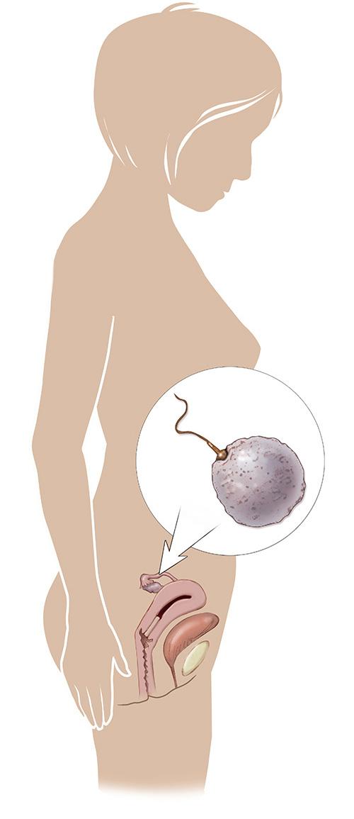 Pregnancy week by week March of Dimes