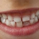 Best dental care practices