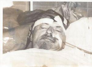 Last Photograph of Leon Trotsky after Assasination