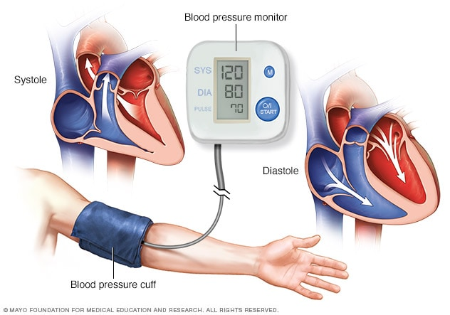 High blood pressure (hypertension) - Diagnosis and treatment - Mayo