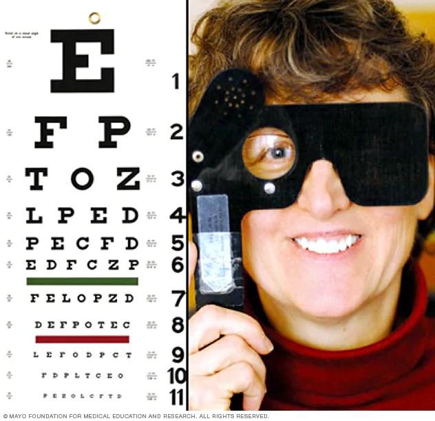 Eye exam - Mayo Clinic