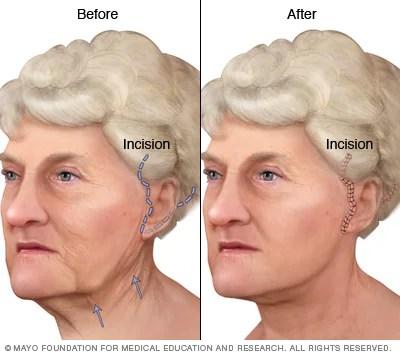 Face-lift - Mayo Clinic