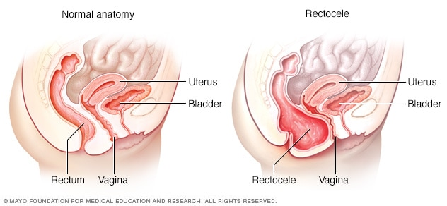 Posterior vaginal prolapse (rectocele) - Symptoms and causes - Mayo